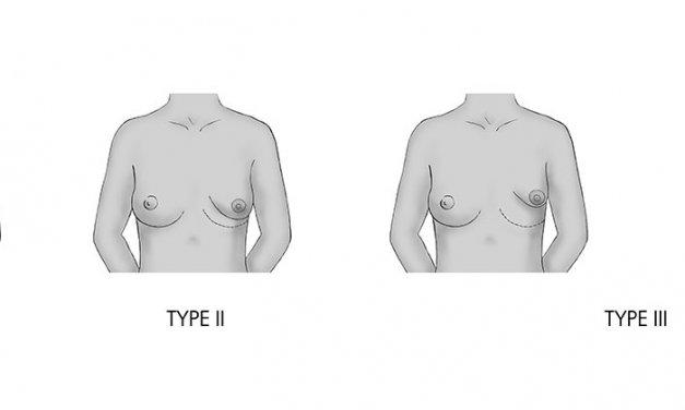 Tratamiento de las Mamas Tuberosas mediante Lipofilling