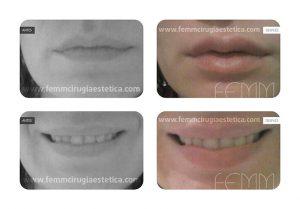 Caso clínico de relleno de labios con ácido hialurónico