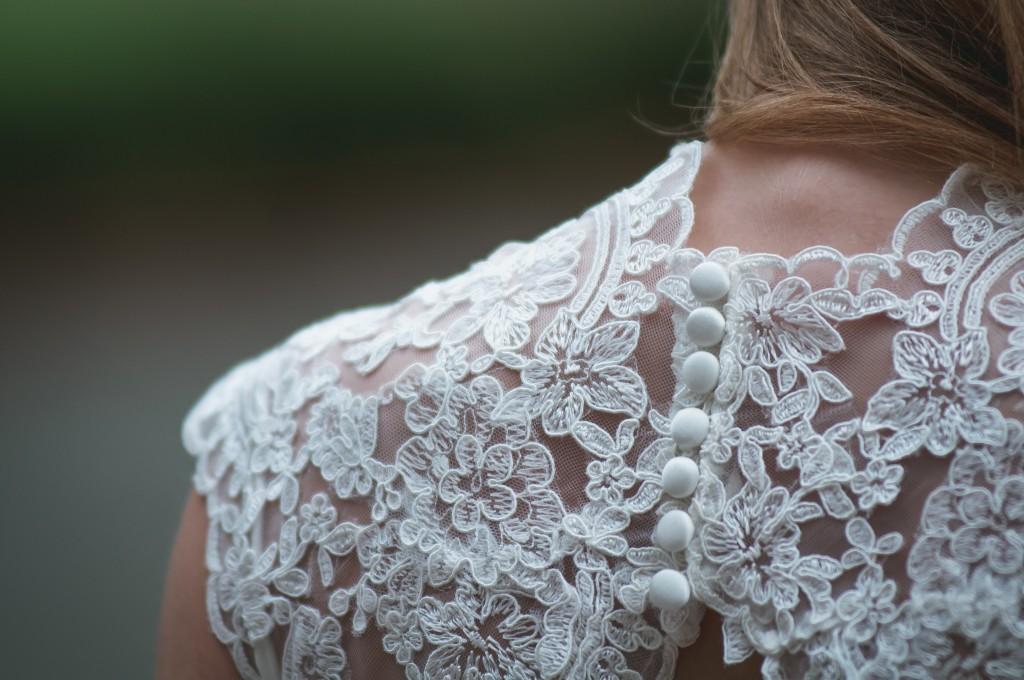 Secretos de medicina estética para ser la novia más guapa