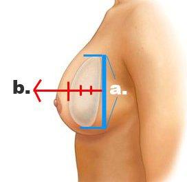 Perfil del implante – bajo, medio y alto