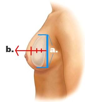 Perfil del implante proyección o altura