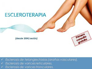 Escleroterapia para eliminar las varices y las arañas vasculares
