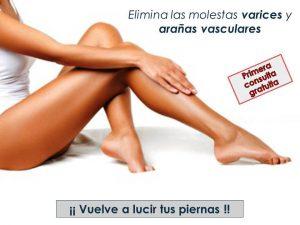 Enfermedad Venosa Crónica: Elimina las molestas varices y arañas vasculares
