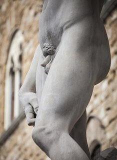 Hipospadias: una anomalía de la uretra masculina