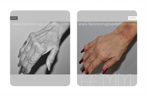 Fotografías antes y después de un lipofilling de manos.