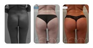 Fotografías antes y después de un aumento de glúteos con prótesis