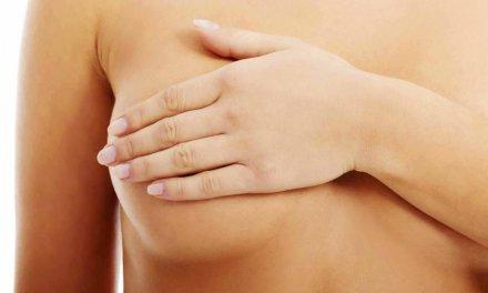 Pezones invertidos: un problema que afecta hasta el 20% de mujeres
