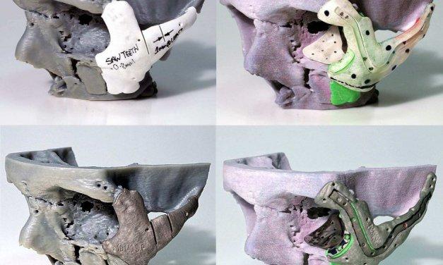Reconstrucción facial con ayuda de una impresora 3D