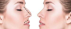 Rinomodelación: Rinoplastia sin cirugía