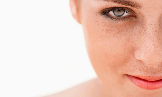 ¿Cómo eliminar las manchas en la piel?
