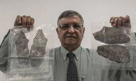 Un equipo médico reconstruye la vagina de una mujer usando piel de pez