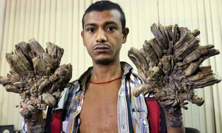«Hombre árbol» de Bangladesh abandona la esperanza de curarse