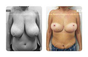 Fotografías antes y después de cirugía de reducción de pecho mediante resecado de 480 gramos de tejido en cada mama
