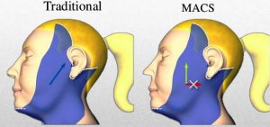 Lifting Macs: El minilifting facial menos invasivo y más natural