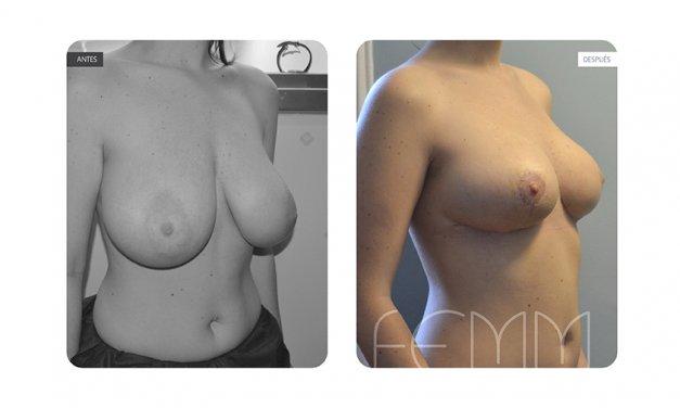 ¿TENGO LOS PECHOS GRANDES?: Tratamiento de la hipertrofia mamaria
