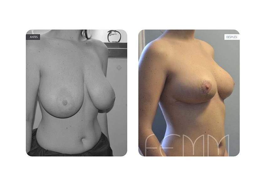Cirugía de Reducción de pecho (Mamoplastia de Reducción) a paciente a la que se extraen 180gr. de cada mama. Asimismo se le realiza en el mismo procedimiento una Mastopexia (Elevación del Pecho). Se observa la reducción y remodelación mamaria, así como la remodelación del complejo pezón - areola. Al cabo del mes aún se observan ligeras cicatrices. En estos casos puede experimentarse, además, una mejoría en la salud y calidad de vida de las pacientes con problemas previos por dorsalgias o dolores de espalda.