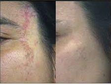 técnicas anti-cicatrices