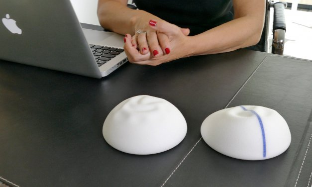 La empresa de implantes B-Lite encantada con mi vídeo