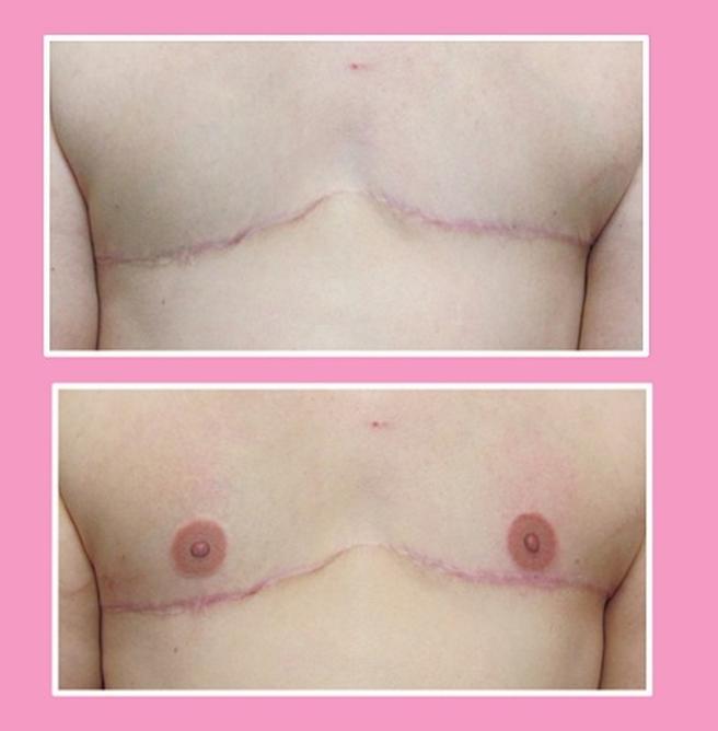 El pecho de una mujer, antes y después de pasar por las manos de Vinnie Myers