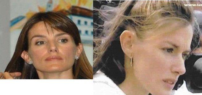 orejas despegadas de la Reina