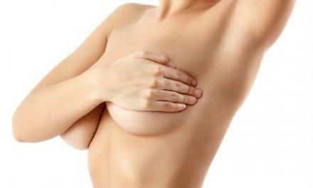 Mastectomía: una intervención con riesgos y posibles decepciones estéticas