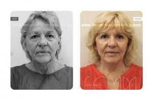 lifting-facial-caso-clinico-foto-01-a