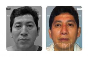 blefaroplastia-caso-clinico-foto-04-a