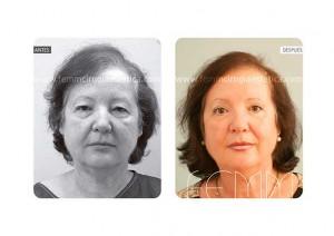 blefaroplastia-caso-clinico-foto-05-c