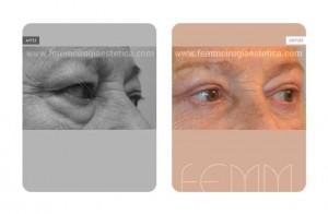 blefaroplastia-caso-clinico-foto-06-a