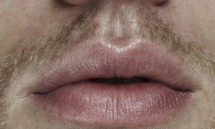 El aumento de labios y otras operaciones estéticas que demandan los hombres