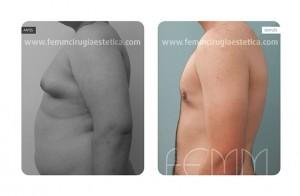 ginecomastia-caso-clinico-foto-06-a
