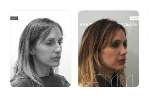Foto oblicua derecha antes y después de una rinoplastia abierta