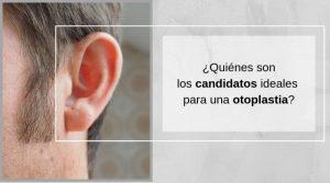 ¿Quiénes son los candidatos ideales para una otoplastia?